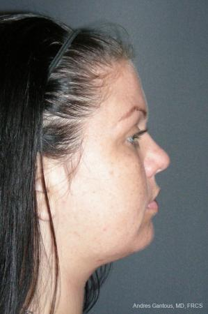 Facelift & Neck Lift: Patient 11 - After Image 3