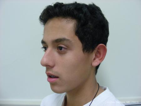 Otoplasty And Earlobe Repair: Patient 5 - Before Image 4