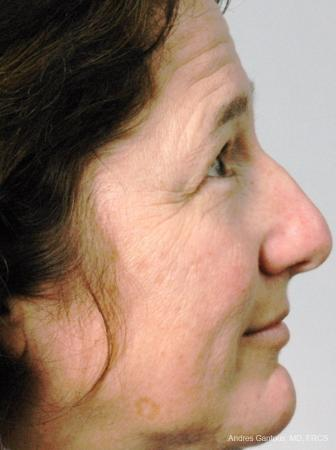 Rhinoplasty: Patient 17 - Before Image 2
