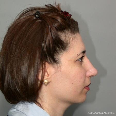 Rhinoplasty: Patient 42 - After Image 4