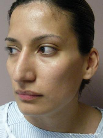Rhinoplasty: Patient 58 - Before Image 4
