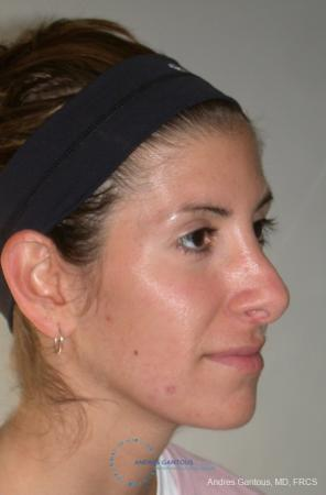Revision Rhinoplasty: Patient 1 - Before Image 2