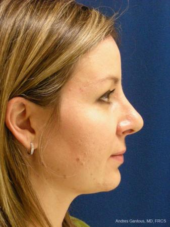 Rhinoplasty: Patient 28 - After Image 4