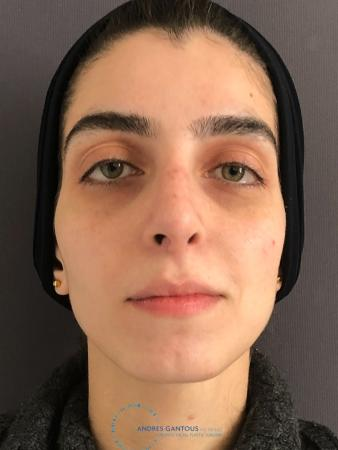 Rhinoplasty: Patient 60 - After Image 1