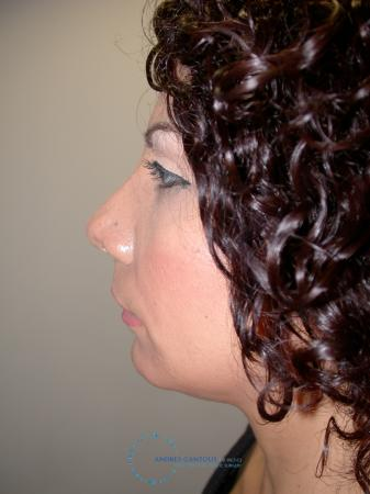 Revision Rhinoplasty: Patient 14 - After Image 6