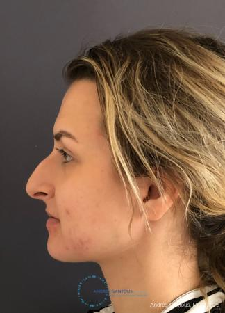 Rhinoplasty: Patient 90 - Before and After Image 6