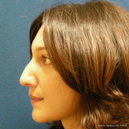 Rhinoplasty: Patient 43 - Before Image 4