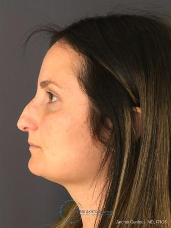 Rhinoplasty: Patient 3 - Before and After Image 6