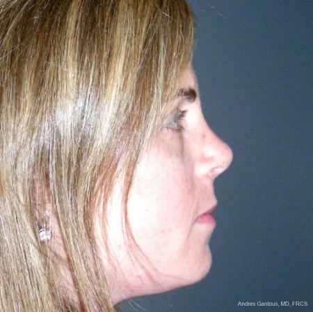 Reconstructive Rhinoplasty: Patient 4 - After Image 3