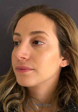 Rhinoplasty: Patient 74 - After Image 4
