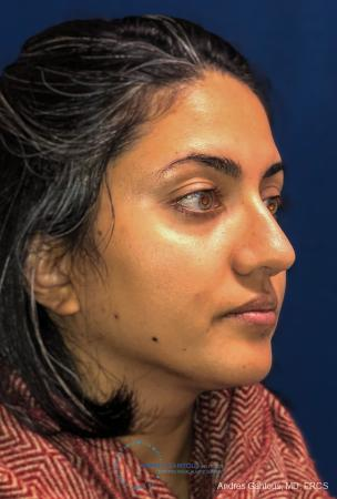 Rhinoplasty: Patient 84 - After Image 3