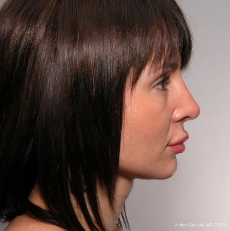 Rhinoplasty: Patient 38 - After Image 2