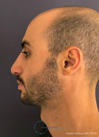 Rhinoplasty: Patient 91 - After Image 6