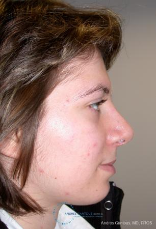 Rhinoplasty: Patient 93 - After Image 4