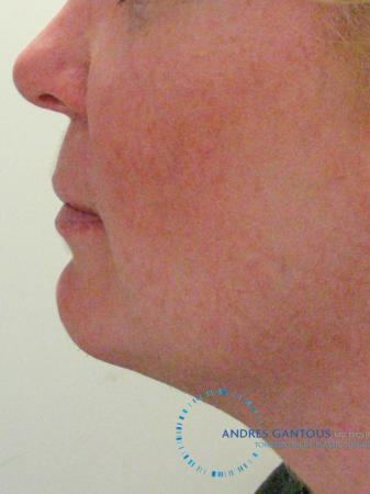 Chin Augmentation: Patient 9 - After Image 3