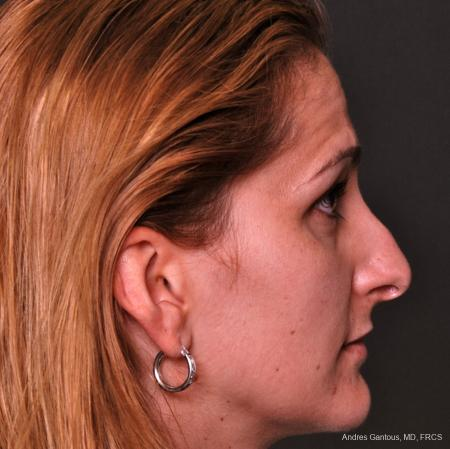 Rhinoplasty: Patient 36 - Before Image 4