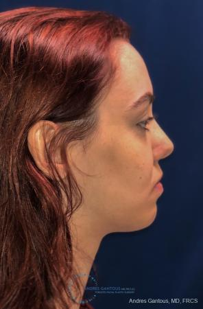 Revision Rhinoplasty: Patient 10 - Before and After Image 6