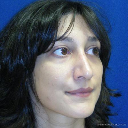Rhinoplasty: Patient 43 - After Image 2