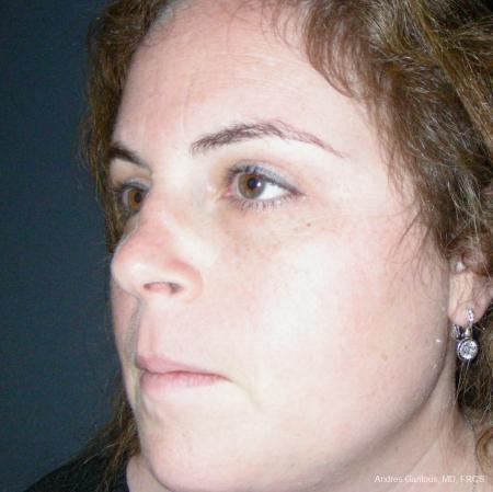 Reconstructive Rhinoplasty: Patient 4 - Before Image 4