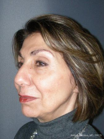Rhinoplasty: Patient 55 - Before Image 2