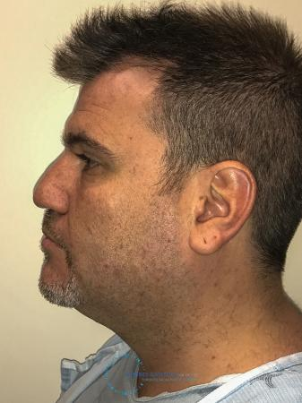 Revision Rhinoplasty: Patient 24 - Before Image 5
