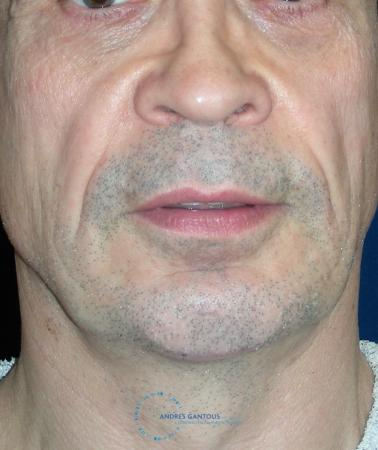 Chin Augmentation: Patient 3 - After Image 1
