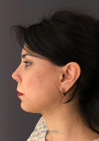 Revision Rhinoplasty: Patient 18 - After Image 6
