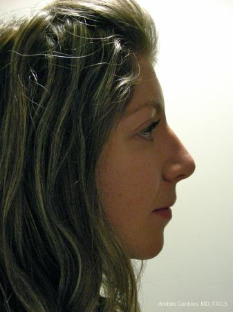 Rhinoplasty: Patient 52 - After Image 5