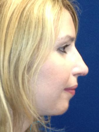 Rhinoplasty: Patient 76 - After Image 5