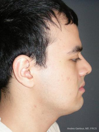 Rhinoplasty: Patient 56 - After Image 3