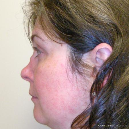 Reconstructive Rhinoplasty: Patient 5 - Before and After Image 5