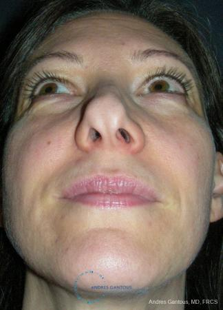Revision Rhinoplasty: Patient 14 - Before Image 2
