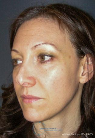 Revision Rhinoplasty: Patient 14 - Before Image 4