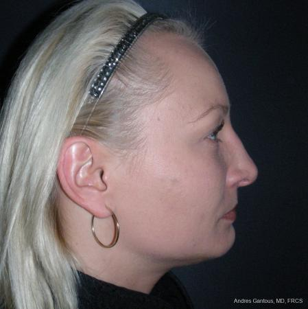 Rhinoplasty: Patient 49 - After Image 3