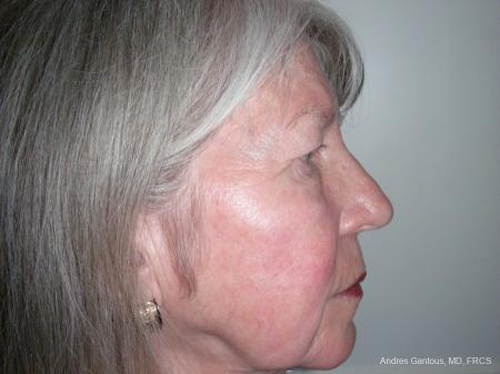 Eyelid Lift: Patient 9 - Before Image 3