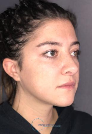 Revision Rhinoplasty: Patient 21 - After Image 4