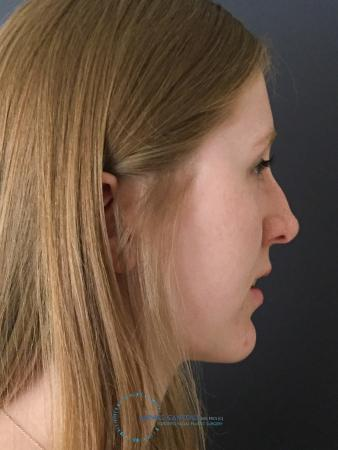 Rhinoplasty: Patient 28 - Before and After Image 6