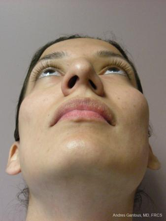 Rhinoplasty: Patient 58 - Before and After Image 6