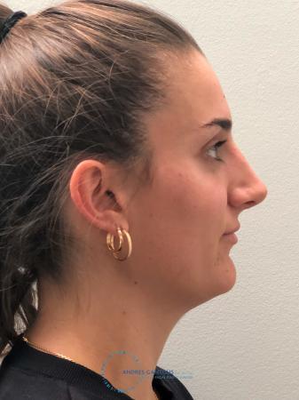 Rhinoplasty: Patient 6 - After 5