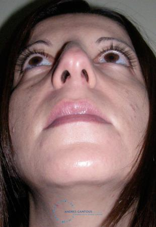 Rhinoplasty: Patient 64 - Before Image 2