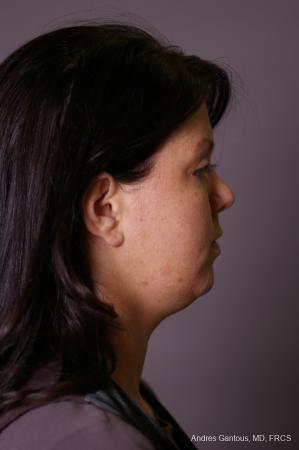 Facelift & Neck Lift: Patient 11 - Before Image 2