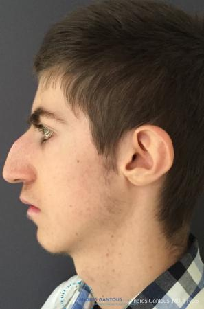 Rhinoplasty: Patient 83 - Before and After Image 4