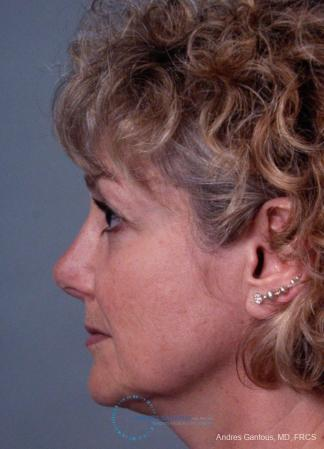 Revision Rhinoplasty: Patient 8 - After Image 6