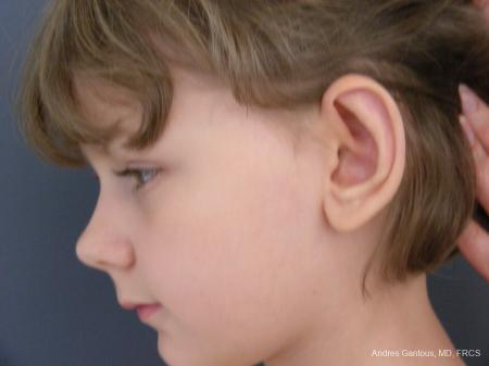 Otoplasty And Earlobe Repair: Patient 27 - After Image 5