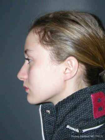 Rhinoplasty: Patient 57 - Before and After Image 5