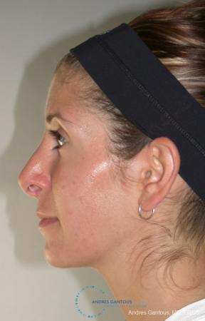 Revision Rhinoplasty: Patient 1 - Before Image 4