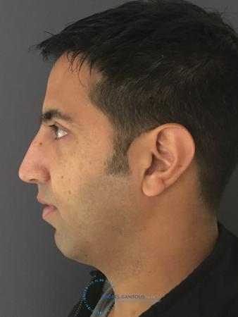 Rhinoplasty: Patient 79 - After Image 6
