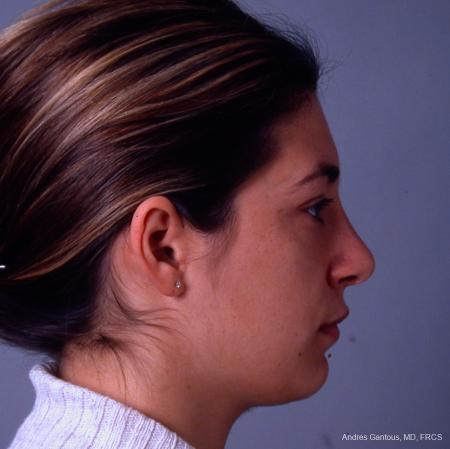 Rhinoplasty: Patient 33 - After Image 5