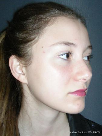 Rhinoplasty: Patient 57 - After Image 2