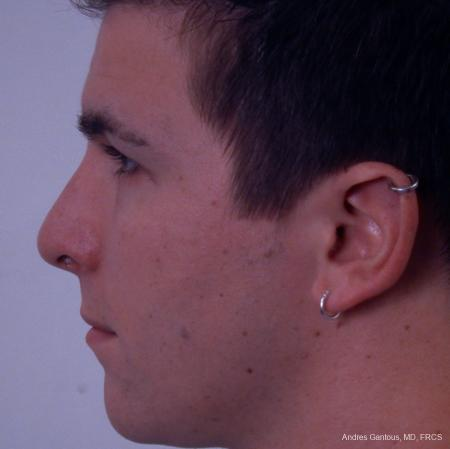 Rhinoplasty: Patient 35 - After Image 2